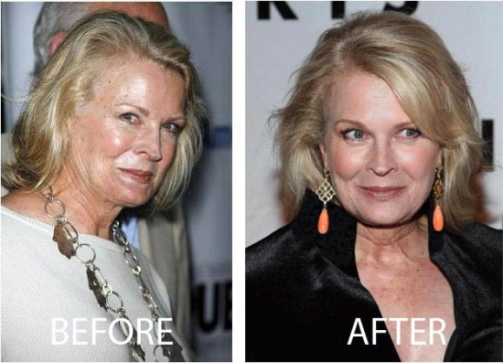 Candice Bergen Plastic Surgery Candice Bergen Plastic Surgery Before and After Picture