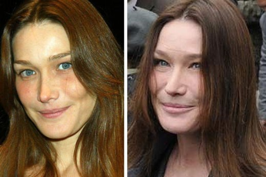 Carla Bruni Botox Carla Bruni Plastic Surgery Before and After Pictures