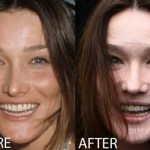 Carla Bruni Plastic Surgery Before and After Pictures