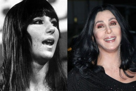 Cher Plastic Surgery Cher Plastic Surgery Before and After Pictures