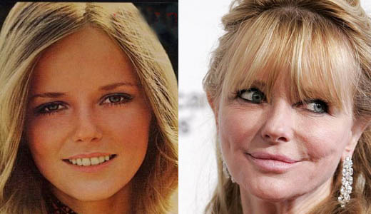 Cheryl Tiegs Plastic Surgery Before After Cheryl Tiegs Plastic Surgery Before and After Pictures