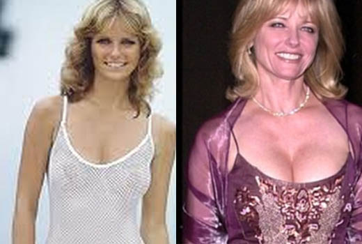 Cheryl Tiegs Plastic Surgery Cheryl Tiegs Plastic Surgery Before and After Pictures