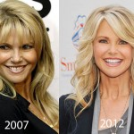 Christie Brinkley Plastic Surgery 150x150 Christy Turlington Nose Job Before and After