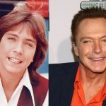 Did David Cassidy Have Plastic Surgery?