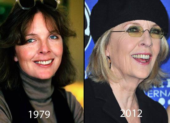 Diane Keaton Plastic Surgery Did Diane Keaton Have Plastic Surgery?