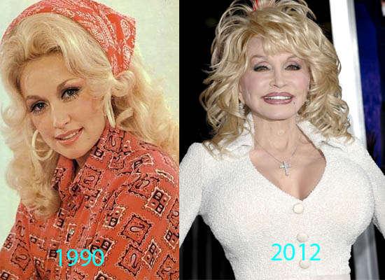 Dolly parton breast surgery