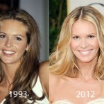 Elle Macpherson Plastic Surgery 150x150 Jennifer Westfeldt Plastic Surgery Rumors   Before and After