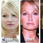 Did Ellen Barkin Have Plastic Surgery?