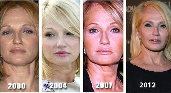 Ellen Barkin Plastic Surgery Did Ellen Barkin Have Plastic Surgery?