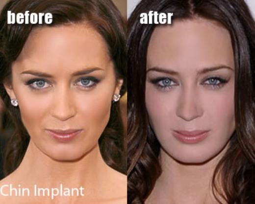 Emily Blunt Plastic Surgery Picture Emily Blunt Plastic Surgery Before and After Pictures