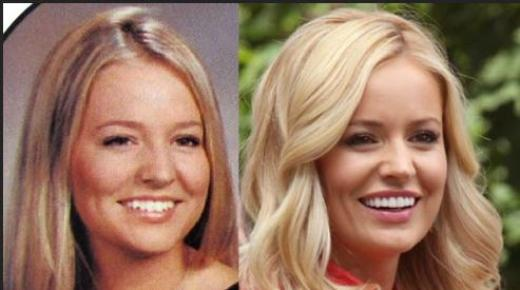 Emily Maynard Plastic Surgery Before After Emily Maynard Plastic Surgery Rumors