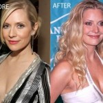 Emily Procter Plastic Surgery Before and After Pictures