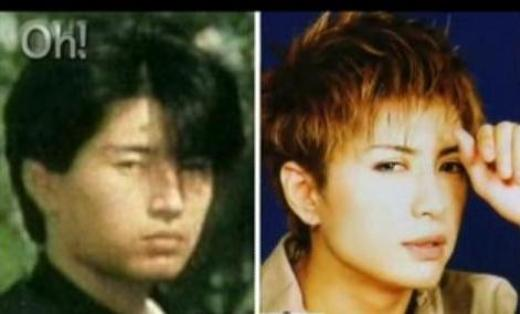 Gackt Plastic Surgery Did Gackt Camui Have Plastic Surgery?