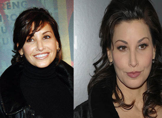 Gina Gershon Plastic Surgery Gina Gershon Plastic Surgery Before and After Picture