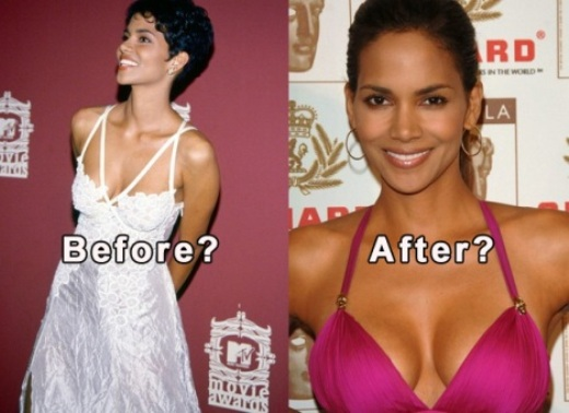 Halle Berry Plastic Surgery Before After Halle Berry Plastic Surgery Before and After Pictures