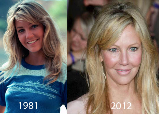 Heather Locklear Plastic Surgery Before And After Pictures