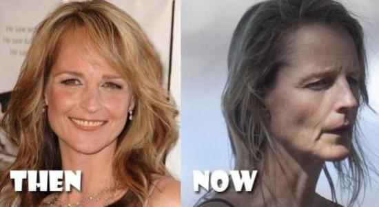 Helen Hunt Plastic Surgery Helen Hunt Bad Plastic Surgery Before and After