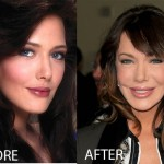 Hunter Tylo Plastic Surgery Before and After Pictures