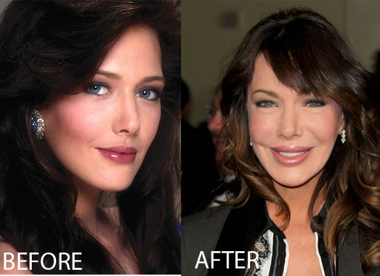 Hunter Tylo Plastic Surgery Before and After Hunter Tylo Plastic Surgery Before and After Pictures