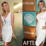 Ivanka Trump Plastic Surgery Before and After Pictures