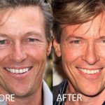 Jack Wagner Plastic Surgery Before and After