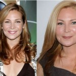 Jennifer Westfeldt Plastic Surgery Rumors – Before and After