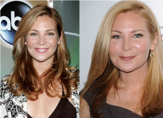 Jennifer Westfeldt Plastic Surgery Jennifer Westfeldt Plastic Surgery Rumors   Before and After