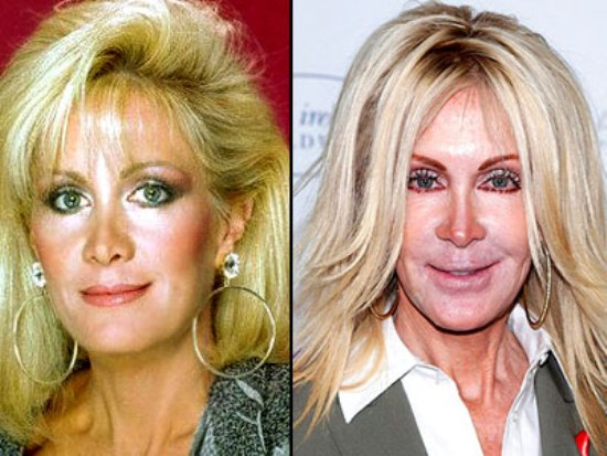 Joan Van Ark Bad Plastic Surgery Before And After Celeb