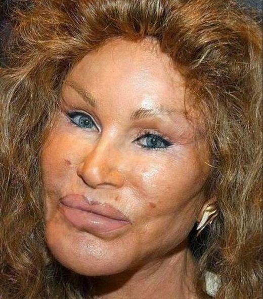 Jocelyn Wildenstein After Plastic Surgery