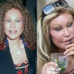 Jocelyn Wildenstein Before and After Pictures