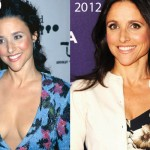 Julia Louis Dreyfus Plastic Surgery 150x150 Did Lara Spencer Have Plastic Surgery?