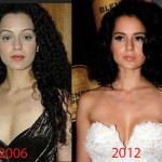 Did Kangana Ranaut Have Plastic Surgery?