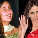 Did Kareena Kapoor Have Plastic Surgery?