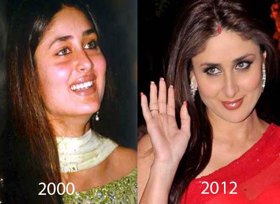 Kareena Kapoor Plastic Surgery Before and After Did Kareena Kapoor Have Plastic Surgery?