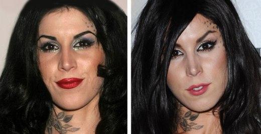 Kat Von D Plastic Surgery Before After Kat Von D Plastic Surgery Before and After Pictures