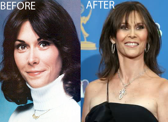 Kate Jackson Plastic Surgery Kate Jackson Bad Plastic Surgery Before and After
