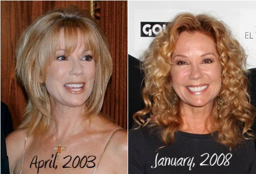 Kathie Lee Gifford Plastic Surgery Before After Kathie Lee Gifford Plastic Surgery Before and After