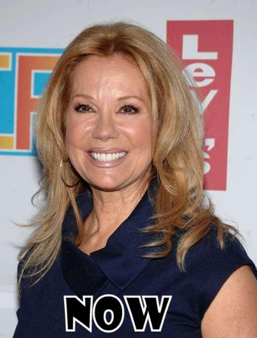 Kathie Lee Gifford Plastic Surgery Pic