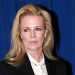 Did Kim Basinger Have Plastic Surgery?