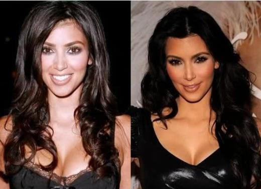 Kim Kardashian Nose Job Kim Kardashian Nose Job Rumors   Before and After