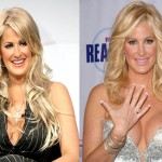 Kim Zolciak Plastic Surgery Before and After Pictures