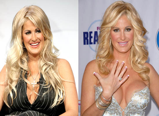 Kim Zolciak Plastic Surgery Kim Zolciak Plastic Surgery Before and After Pictures