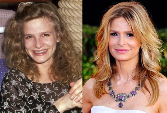 Kyra Sedgwick Plastic Surgery Kyra Sedgwick Regretted Plastic Surgery