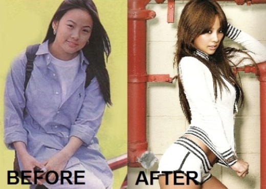 Lee Hyori Plastic Surgery Before After