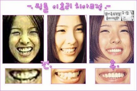 Lee Hyori Plastic Surgery Rumors   Before and After