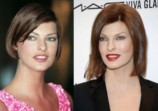 Linda Evangelista Plastic Surgery Linda Evangelista Plastic Surgery Botox Before and After