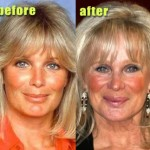 Linda Evans Plastic Surgery Before and After