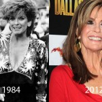 Linda Gray Plastic Surgery 150x150 Rupert Everett Look Young Because of Plastic Surgery