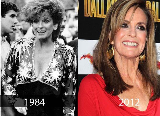Linda Gray Plastic Surgery Linda Gray Plastic Surgery