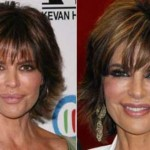 Lisa Rinna Plastic Surgery for Lip Enhancement